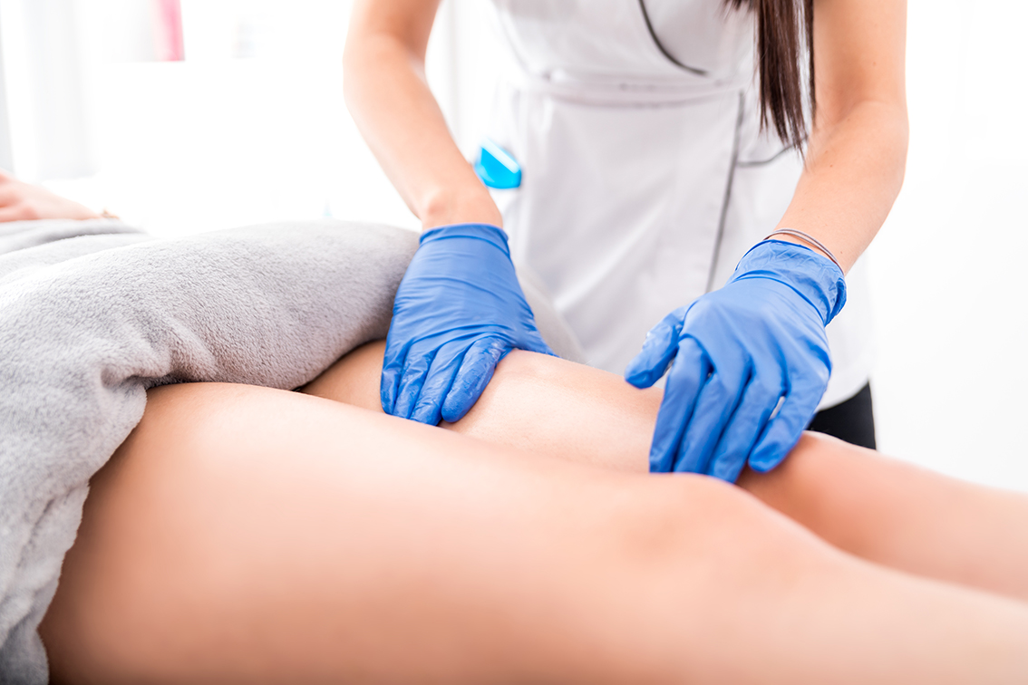 Tratamientos contra la celulitis en Alpedrete para lucir piernas este verano